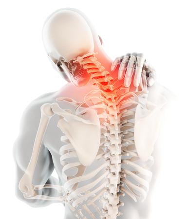 3D illustration, neck painful - cervical spine skeleton x-ray, medical concept. Stock Photo
