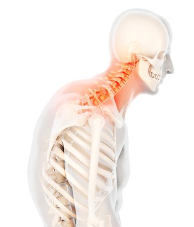 Ilustracja 3D, bolesna szyja - RTG kręgosłupa szyjnego, koncepcja medyczna.