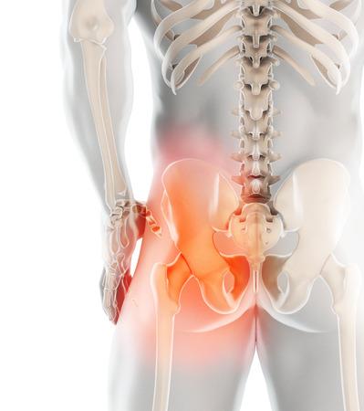 Illustrazione 3D, radiografia dello scheletro doloroso dell'anca, concetto medico.