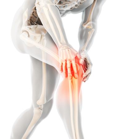 Knieschmerzen - Skelettröntgen, medizinisches Konzept der 3D-Illustration.