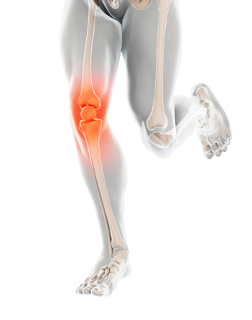 Knee painful - skeleton x-ray, 3D Illustration medical concept. Stockfoto