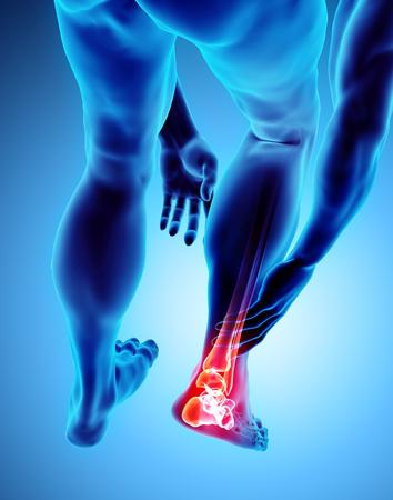 Tobillo doloroso - radiografía del esqueleto, concepto médico Ilustración 3D.
