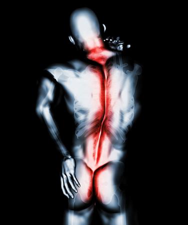 3D Illustration of sacral and cervical painful, medical concept.
