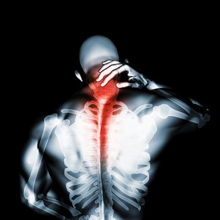 3D illustration, neck painful - cervical spine skeleton x-ray, medical concept. Banco de Imagens