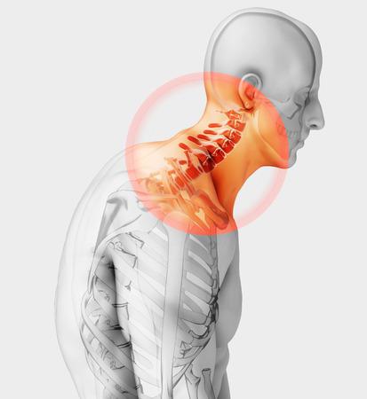 Ilustración 3D, dolor de cuello - radiografía del esqueleto de la columna cervical, concepto médico.
