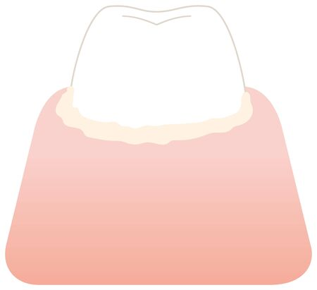 Tooth illustration with accumulated plaque