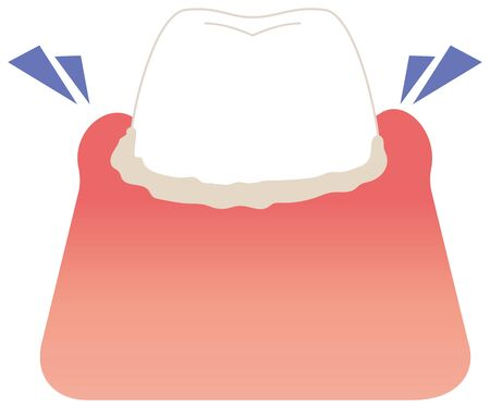 Swelling painful tooth illustration vector Illustration