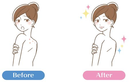 Back acne scars pores dirt women bifor afterBack acne scars pores dirt women bifor after