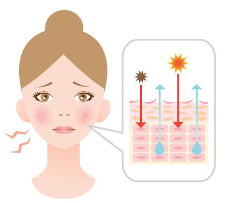 dry skin 向量圖像