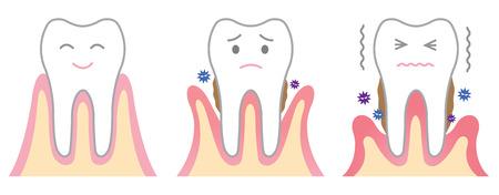 치주 질환 일러스트