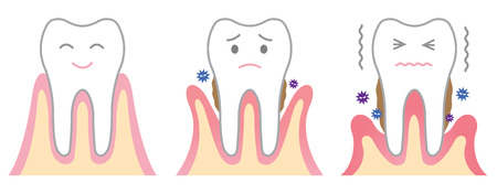 periodontal disease: periodontal disease