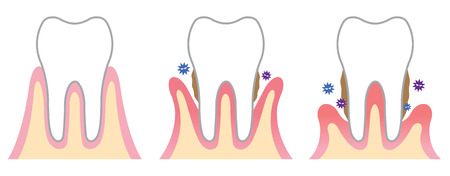 desease: periodontal disease