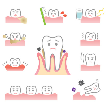 periodontal disease symptom Vettoriali