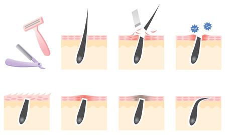 pores: razor shaving skin troubles