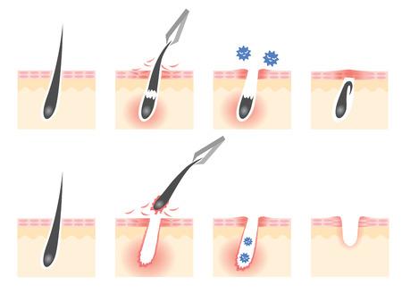 tweezers hair removal skin troubles
