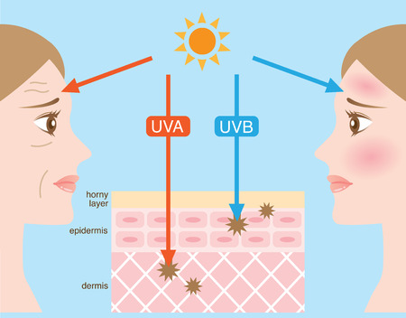 an ultraviolet: ultraviolet rays
