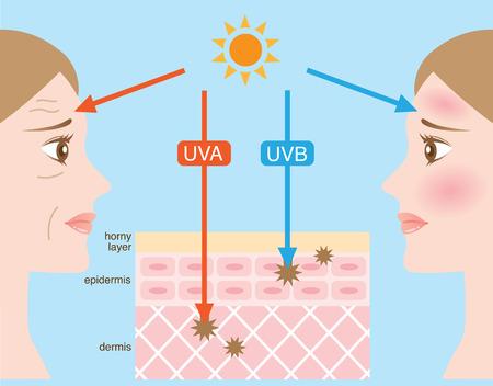 ultraviolet rays