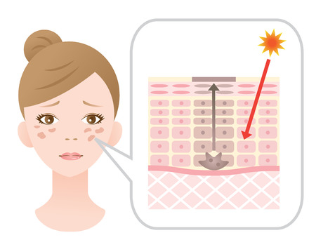 Couperose du visage et le mécanisme de la peau Banque d'images - 57629221