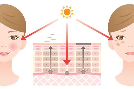 Mécanisme de tache de la peau Banque d'images - 57629219
