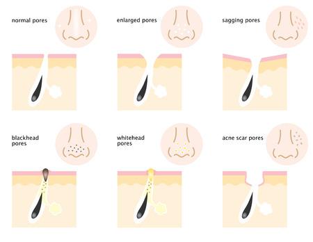 Es gibt Arten von Hautporen auf Nase und Wangen, normale Poren, schlaffe Poren, offene Poren, Mitesser Poren, Whitehead Poren und Akne-Narben Poren.