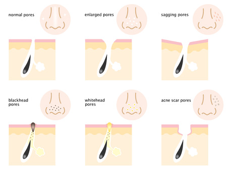 There are kinds of skin pores on nose and cheeks, normal pores, sagging pores, open pores, blackhead pores, whitehead pores, and acne scar pores. Illustration