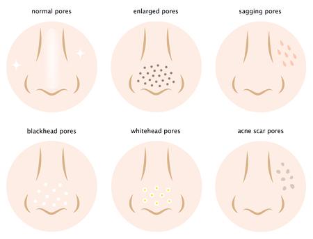 pores: kinds of skin pores Illustration