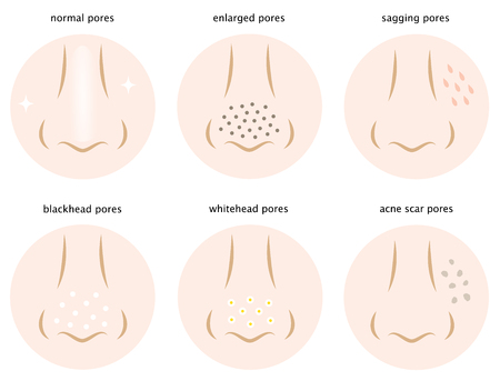 kinds of skin pores Vettoriali