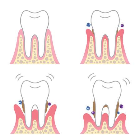 desease periodontal Ilustración de vector
