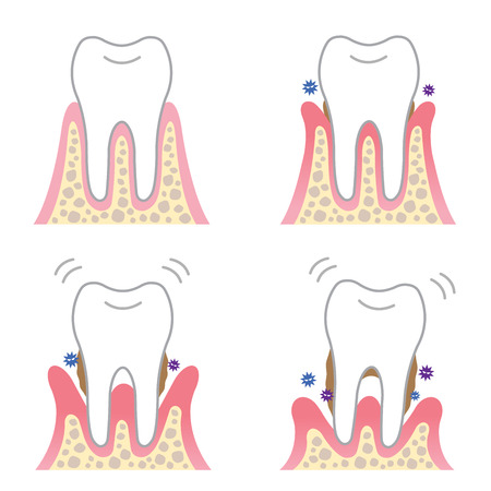 desease: periodontal desease