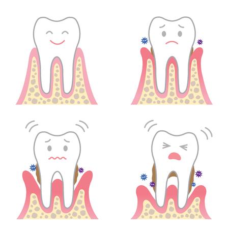 enfermedad periodontal Ilustración de vector