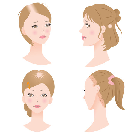 female hair loss Illustration
