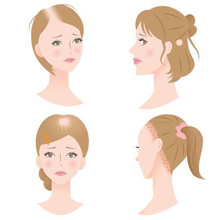 female hair loss Illustration