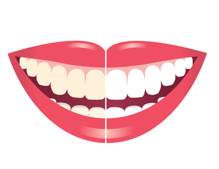 bleaching: whitening teeth isolated on white background