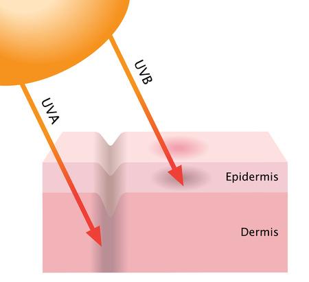 UVA and UVB radiation