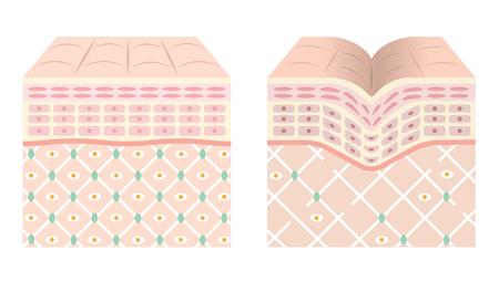 Diagramas de piel joven y piel vieja. Ilustración de vector