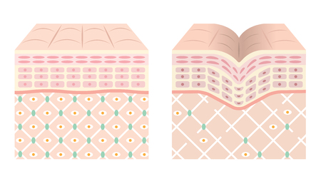 elasticity: Diagrams of young skin and old skin. Illustration