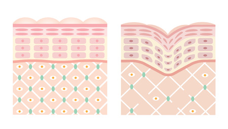 diagrams of young skin and old skin. young skin is firm tight, its collagen framework is healthy. old skin sags as it loses its support structure. Illustration