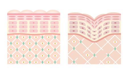 diagrammen van jonge huid en oude huid. jonge huid is stevig vast, het collageenraamwerk is gezond. oude huid zakt als het zijn ondersteunende structuur verliest.