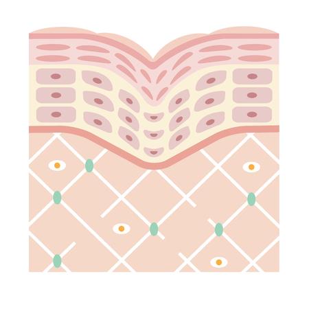 diagram of old skin showing the collagen framework is broken and wrinkles appears. Illustration