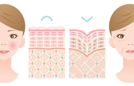 Diagramm der jungen Haut und der alten Haut.