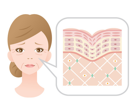 Diagram of old skin showing the collagen framework is broken and wrinkles appears.