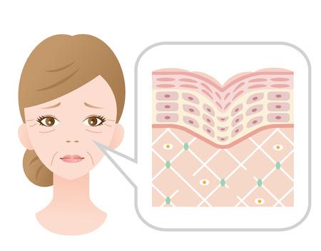 Diagram of old skin showing the collagen framework is broken and wrinkles appears.