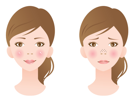 clogged pores and clean pores on nose. before and after skin care beauty concept