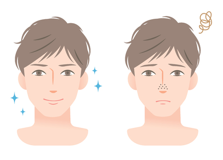 Clogged pores and clean pores on nose of young mens face. before and after mens skin care beauty concept