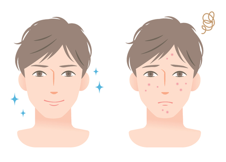 young man with acne on his face before and after facial  treatment Illusztráció