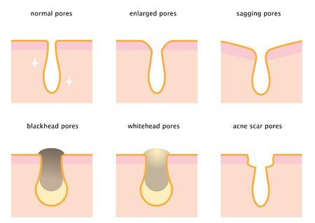 set of skin pores: normal, sagging, enlarged, blackhead, whitehead and acne scar. beauty and skin care concept