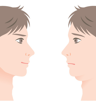 Men with a double chin and beautiful slim chin. mens facial treatment before and after. Illustration