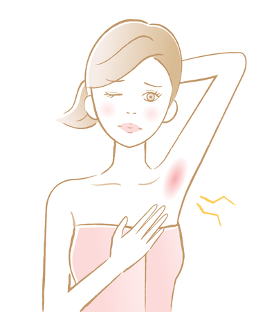 female armpit hair removal. armpit red rash. beauty and skin care concept
