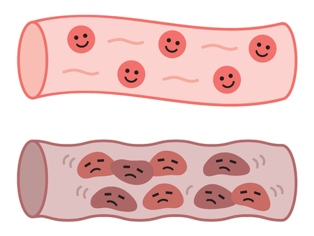 healthy blood vessel and clogged artery in cute characters. health care concept Vettoriali