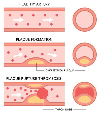 diagram showing stages of atherosclerosis in flat illustration. normal artery, accumulation of cholesterol in blood vessel, and blood clot formation